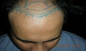 Hair Transplant Pakistan
