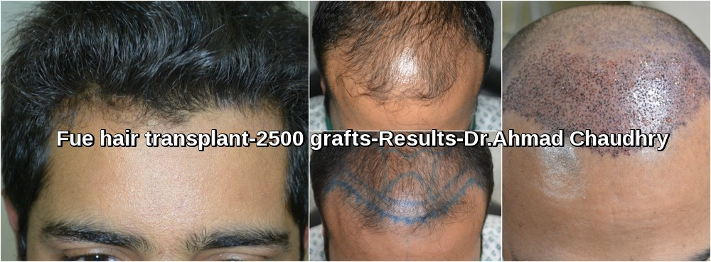 2500 fue hair transplant result cosmoderma clinic Pakistan