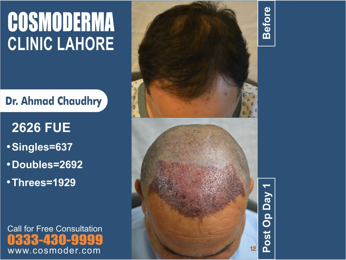 2626 Fue grafts-hair transplant Pakistan