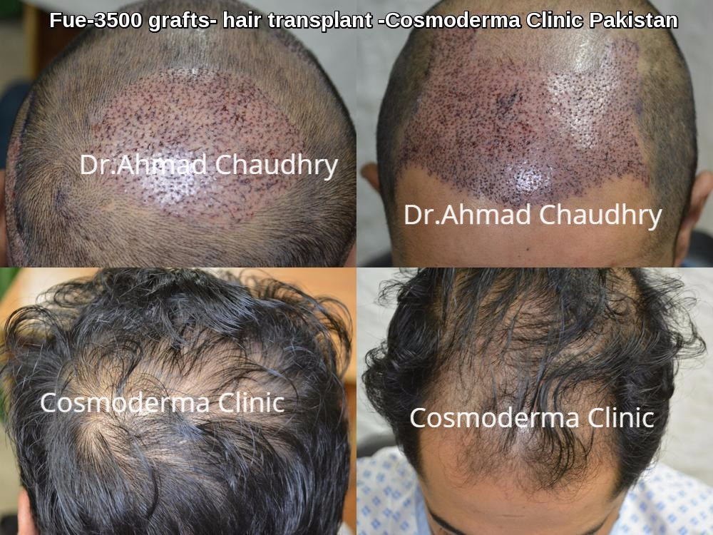 3500 Fue hair transplant grafts
