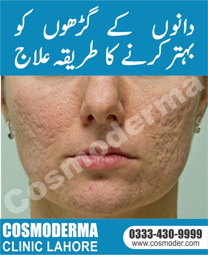 acne scar treatment clinic in Lahore