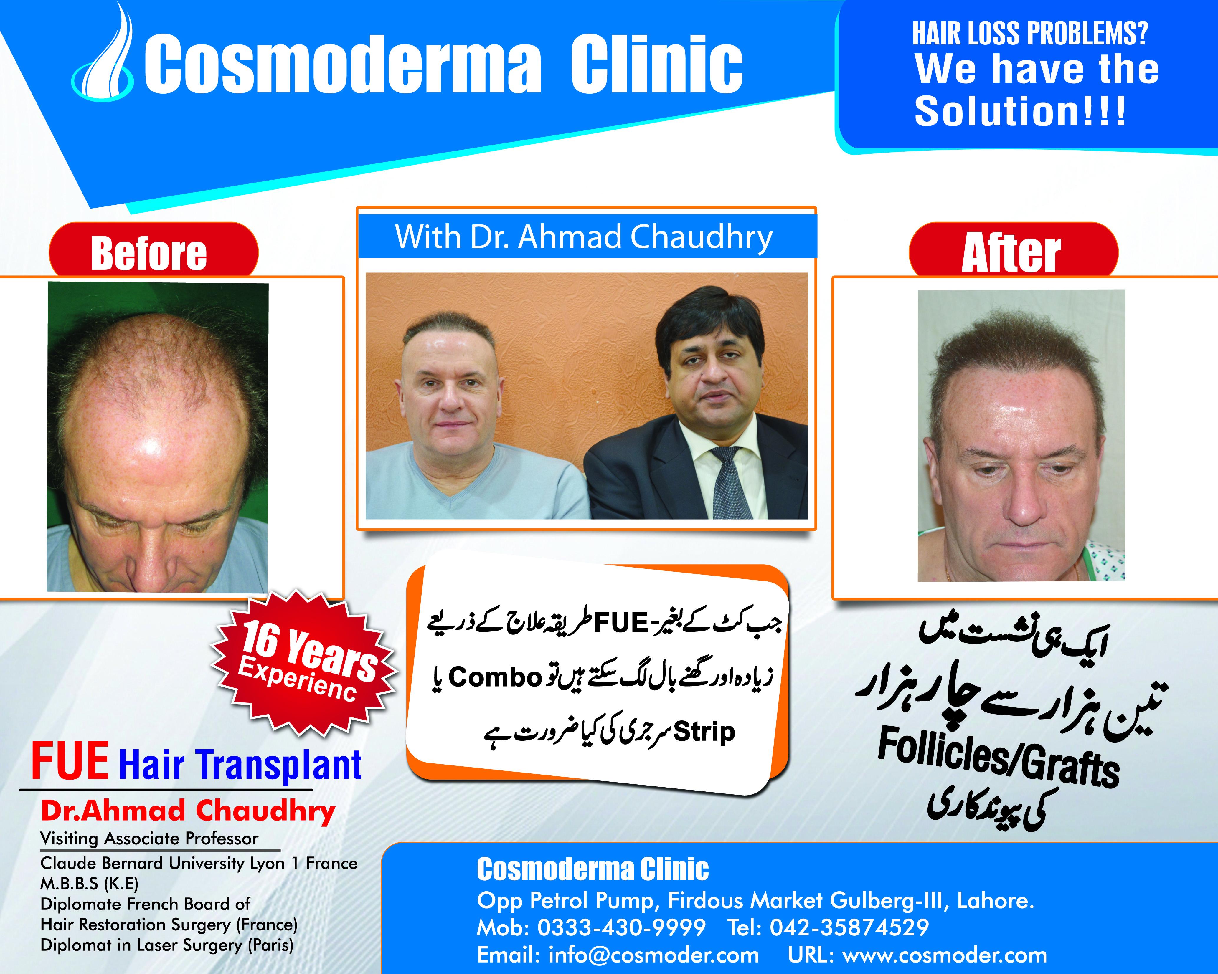 Hair loss- baldness treatment