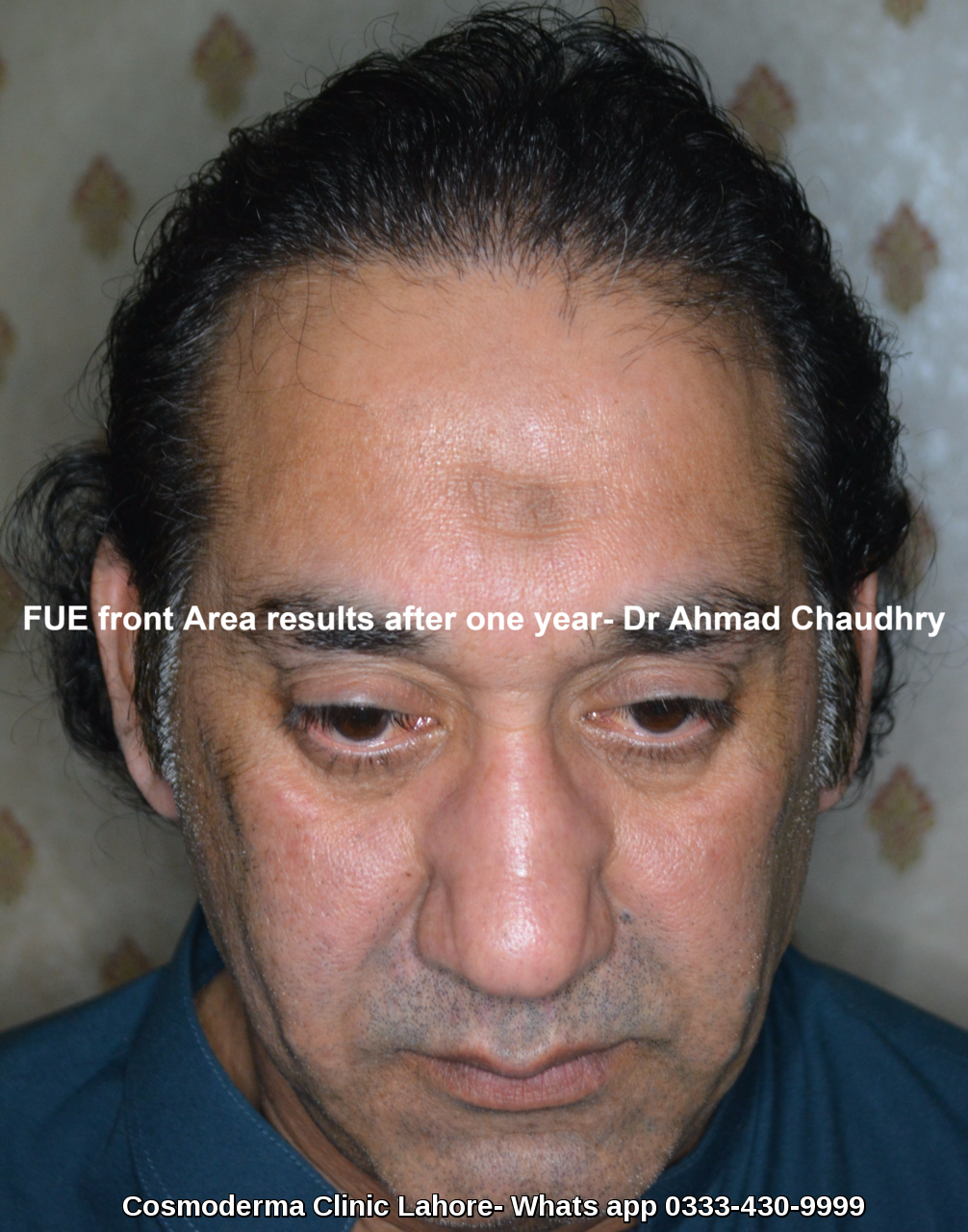 Best Fue procedure in Pakistan