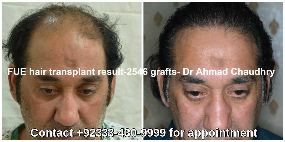 Best hair transplant results clinic Pakistan