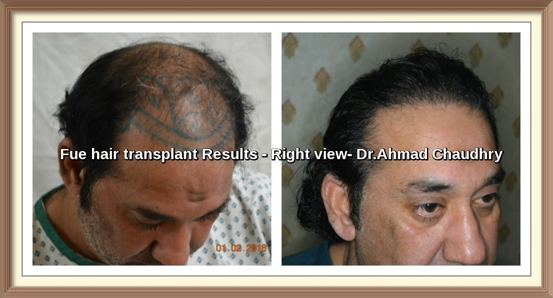 Best Fue hair transplant results Pakistan