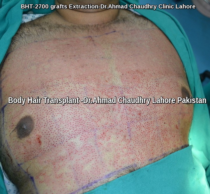 Body hair transplant in Pakistan -Dr Ahmad Chaudhry