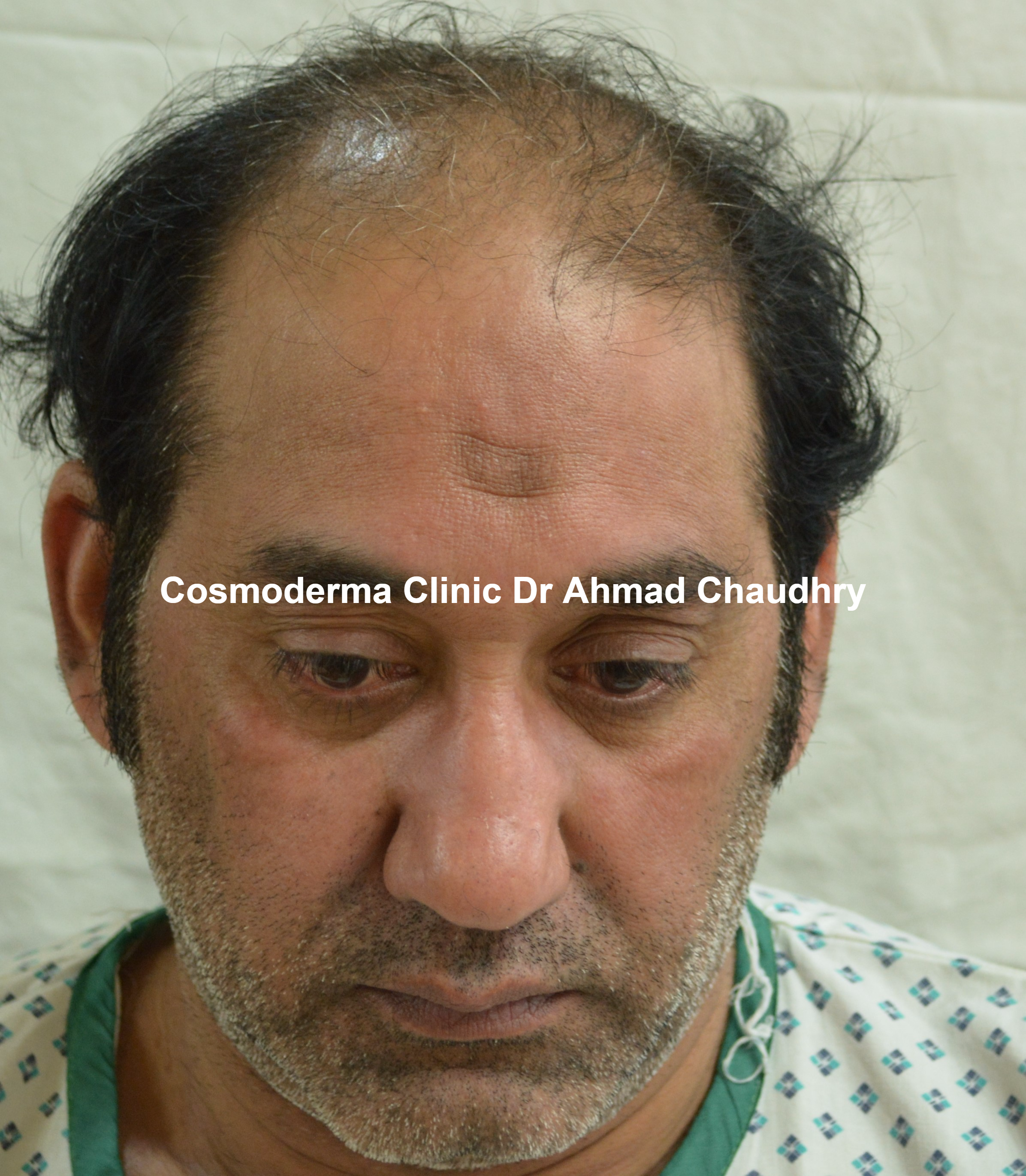 Diabetic patient before hair transplant