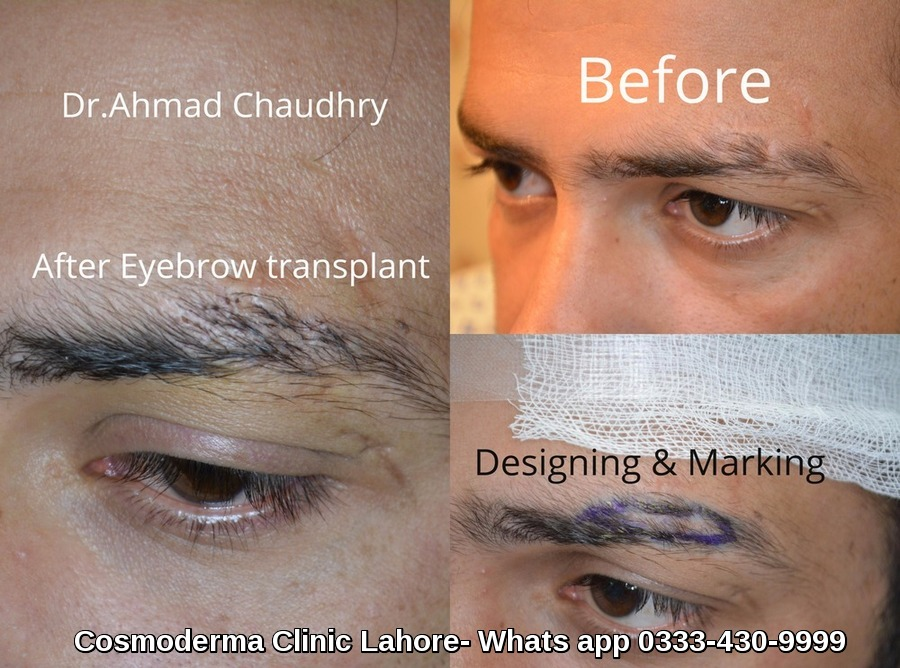 Eyebrow hair transplant in Pakistan