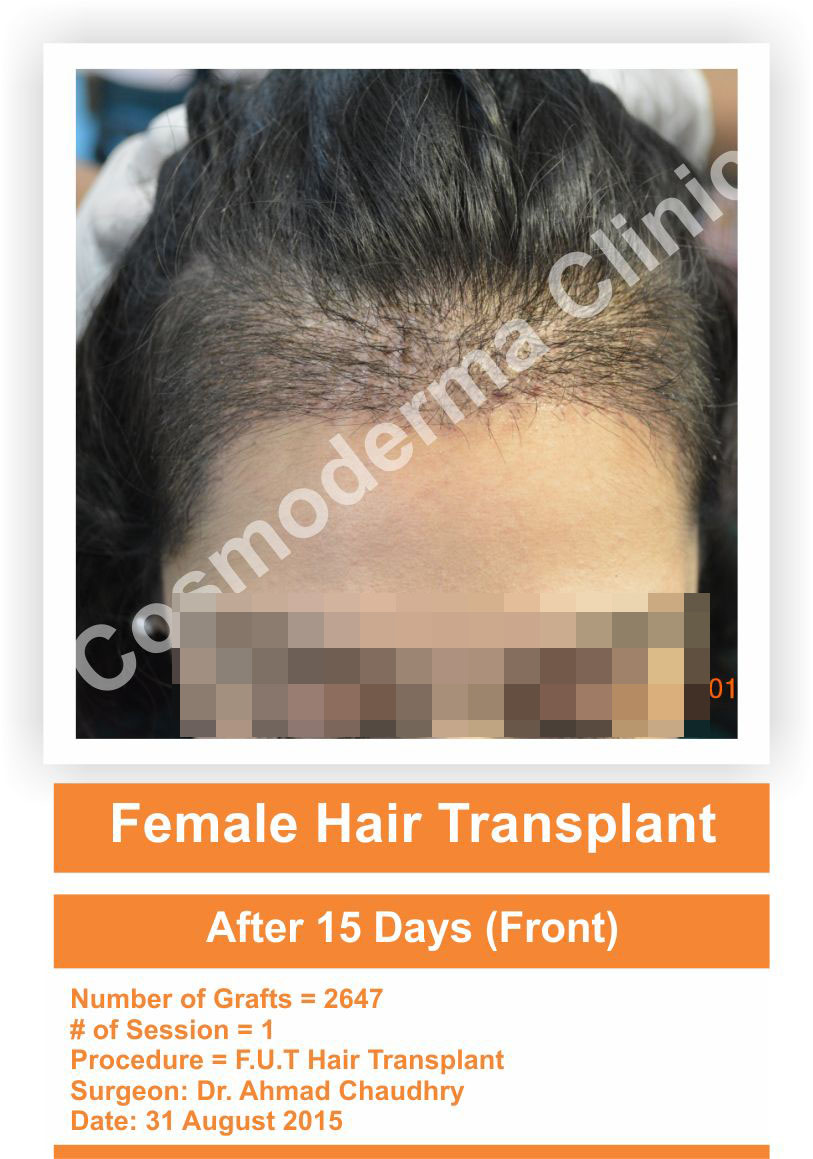 female hair transplant front hairline