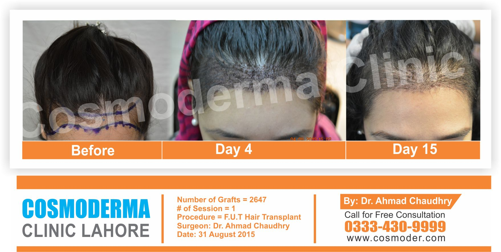 Female hair transplant in Pakistan by Dr.Ahmad