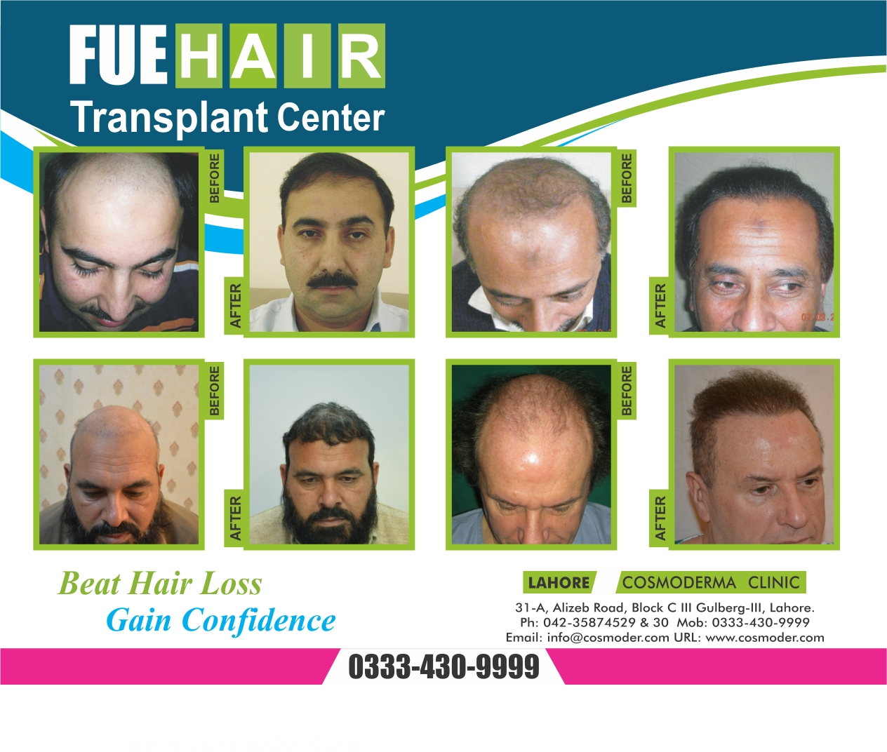 Frontal hair transplant cost and results in Pakistan