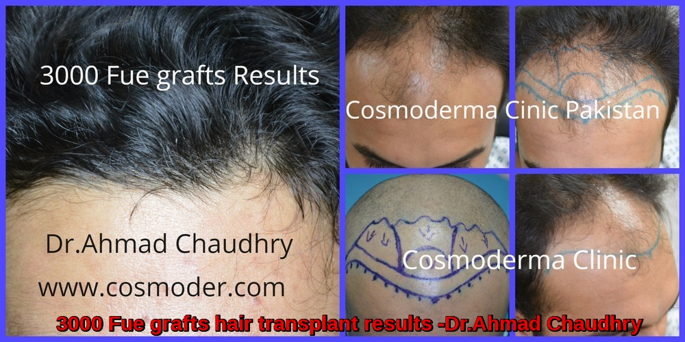 3000 grafts fue hair transplant results in Pakistan