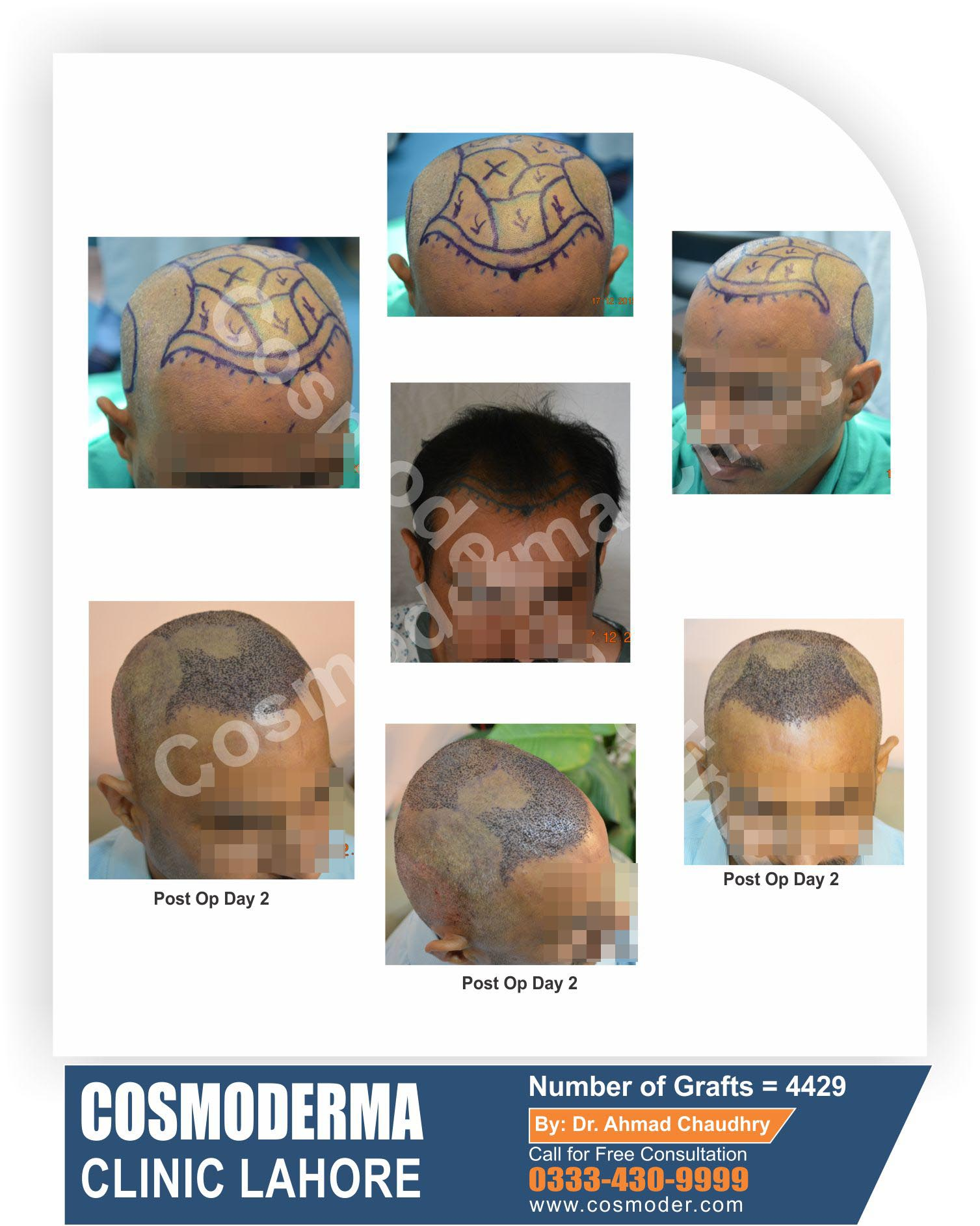 Fue hair transplant 4429 grafts step by step