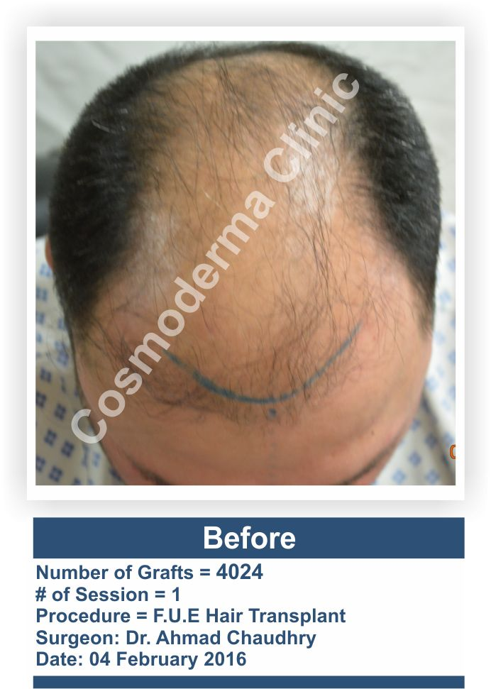 Fue hair transplant procedure Lahore