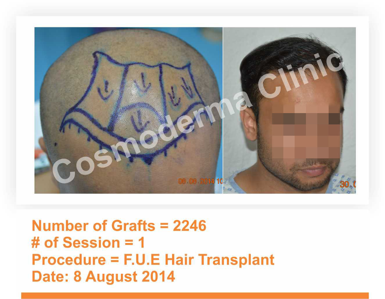 fue hair transplant results Lahore