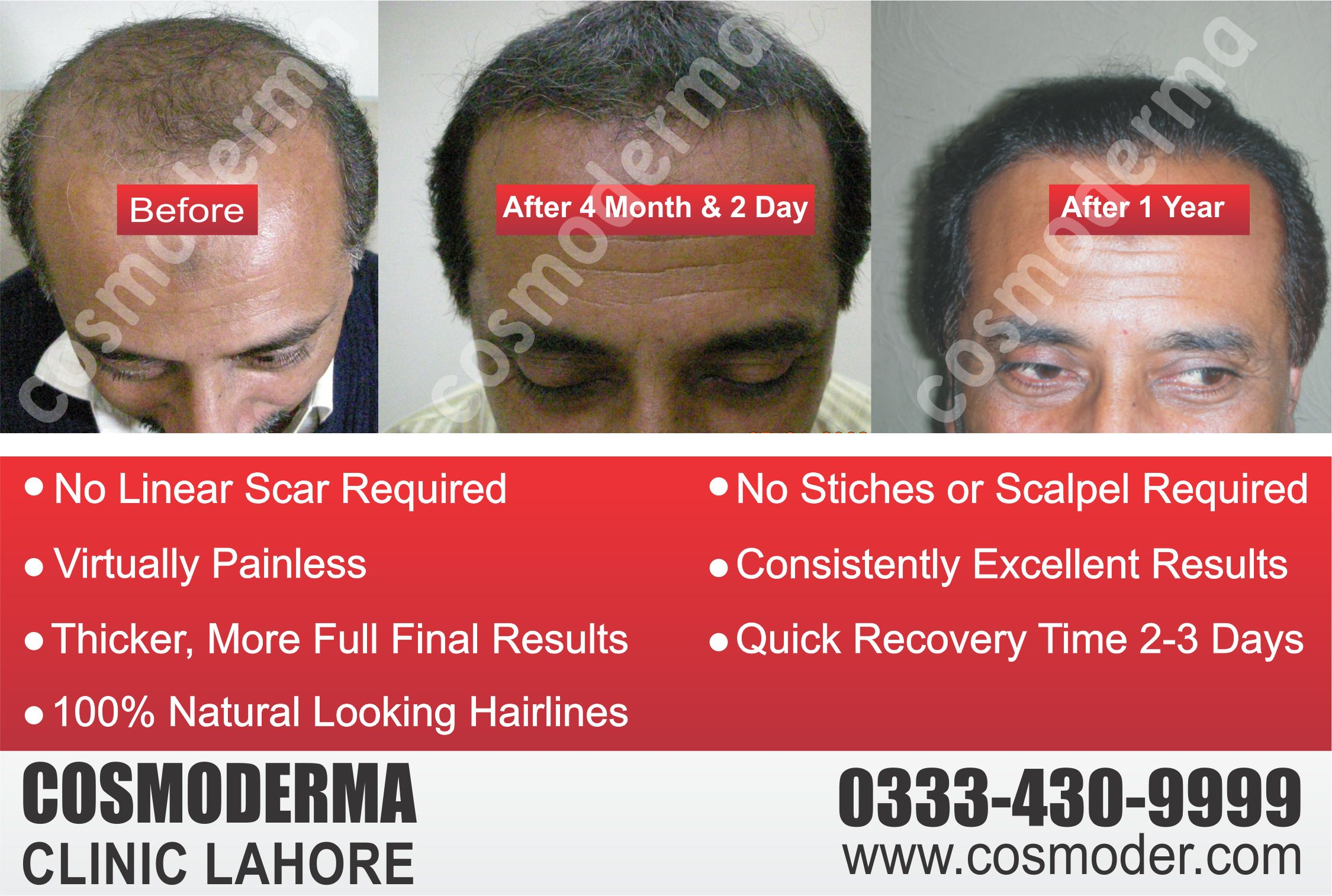 Fue hair transplant results after one year