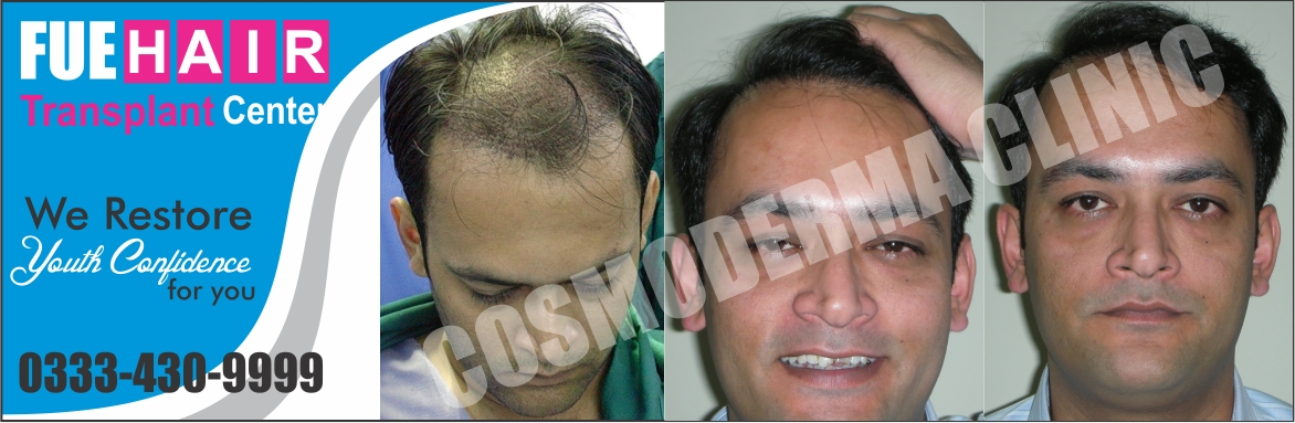 Hair restoration in Pakistan
