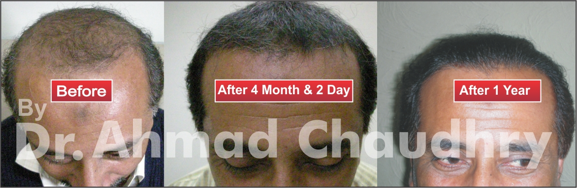 Hair transplant prices in Pakistan