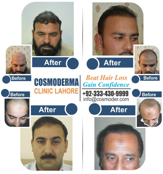 FUE Hair Transplant Cost in Lahore