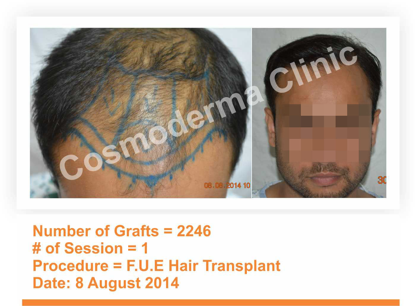 Fue hair transplant results in Pakistan